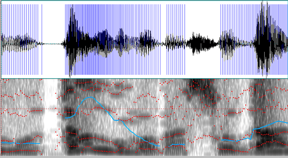 Composite image of audio waveform alongside spectrogram representation