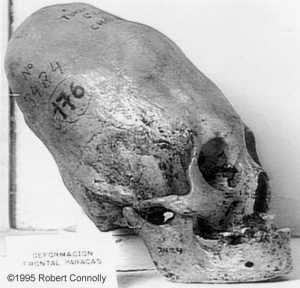 MalDia An elongated skull