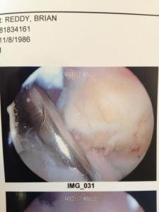 Reconstructive ACL surgery