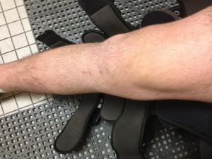 meniscus repair pictures