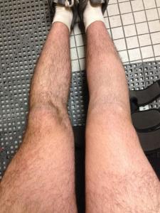 meniscus repair acl surgery pictures