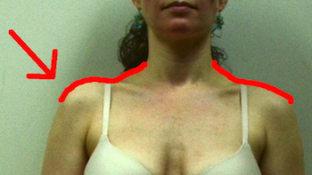 jennifer-front-humeral-superior-glide-arrow-comparison