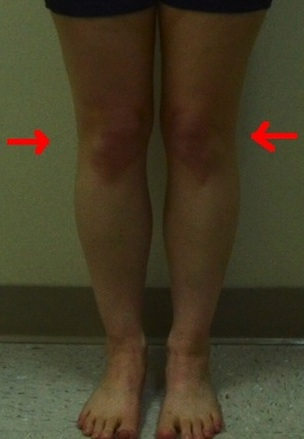 jennifer-front-less-quality-internal-rotation-knees 2