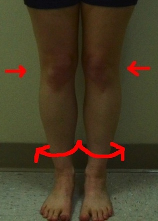 jennifer-front-less-quality-internal-rotation-knees-tibias-too 2