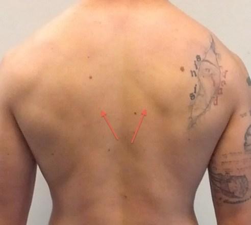 jeremy-back-rhomboid-lines 2