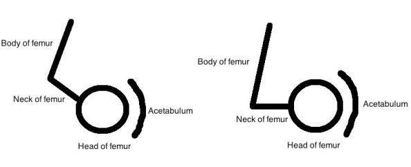 Normal and retroverted femur side by side