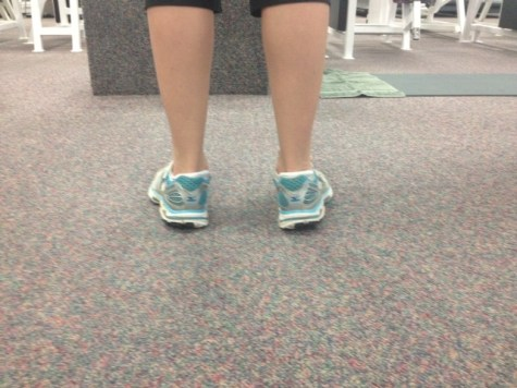 Standing overpronation ankles turned in