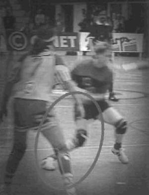ACL injury knee valgus turning in