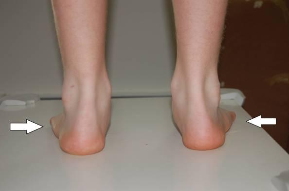 flat feet pronation