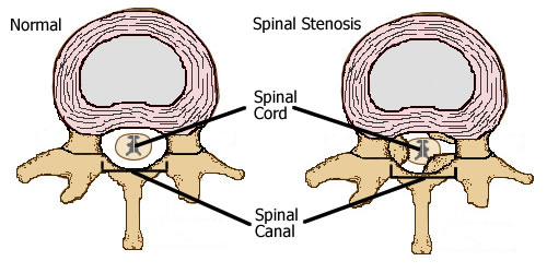 Spinal canal stenosis normal and abnormal