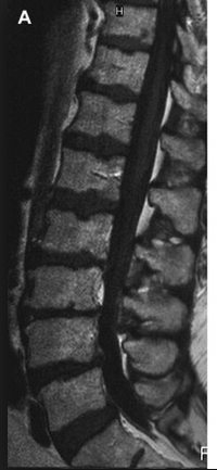 Spine MRI Lower