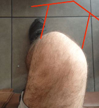 Seated knee valgus with lines