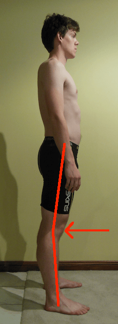 Angus Right Side with knee hyperextension lines