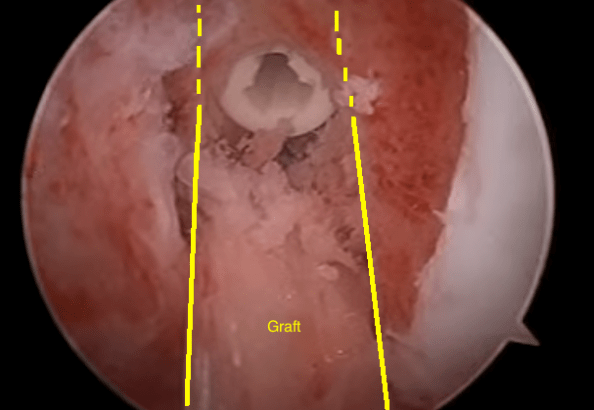 ACL Surgery Screw with graft with lines
