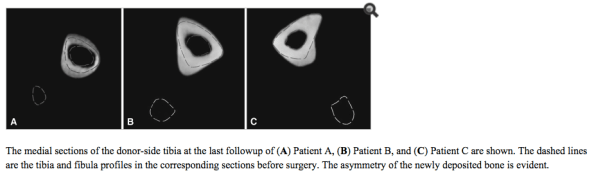 Fibula removed cross section