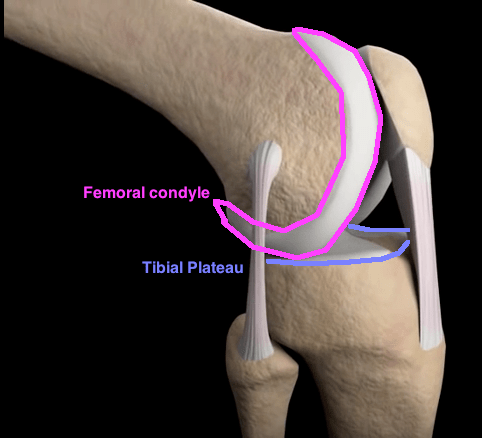 Knee flexion more bent with text