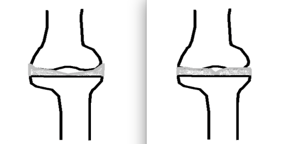 Meniscus wedge vs thickness comparison