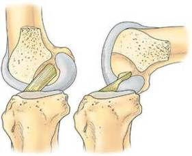 acl knee straight and knee bent