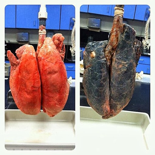 Image credit: http://slaintemagazine.ie/wp-content/uploads/2015/01/healthy-lungs-vs-smokers-lungs.jpg