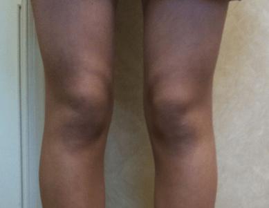 femur anteversion knees close up