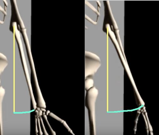 Ulna comparison forearm neutral to pronated