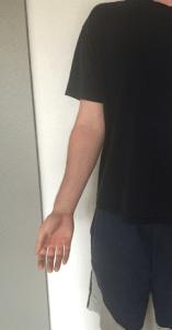 Elbow valgus curl 1