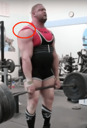 Heavy deadlift shoulder sulcus sign 3