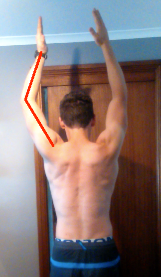 Angus asymmetric arm raise overhead after surgery arm can't straighten
