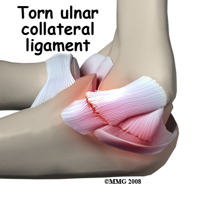 torn ulnar collateral ligament elbow