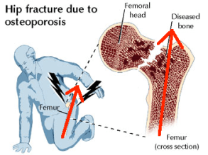 femoral-neck-fracture-falling-on-knee-with-line