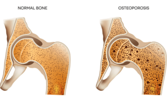 low-bone-density-femoral-head-neck-hip