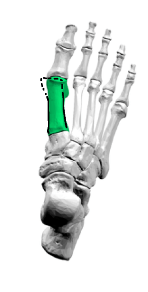 hallux-valgus-sesamoids-closer-up-first-metatarsal-lines