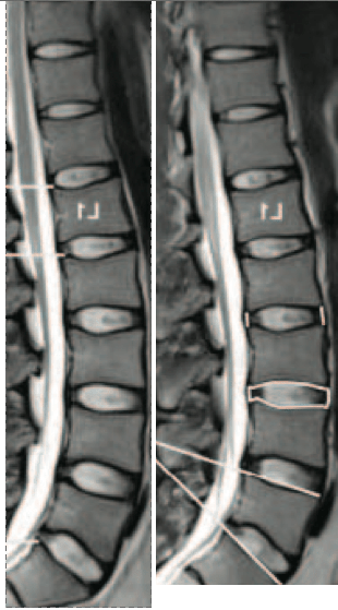 spine-discs-before-and-after-bed-rest-sides-flipped