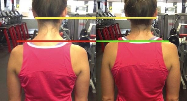 shoulder comparison tight neck pain