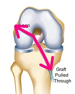 ACL surgery line of pull graft arthritis