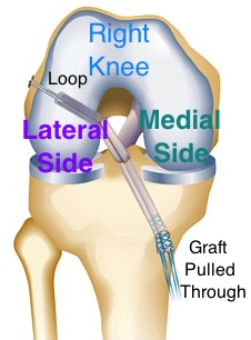 acl-surgery side to side labeling arthritis