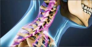 Effects of Poor Posture on the Lower Cervical Vertebrae
