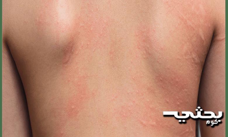 التهاب الجلد التماسي،التشخيص، والعلاج