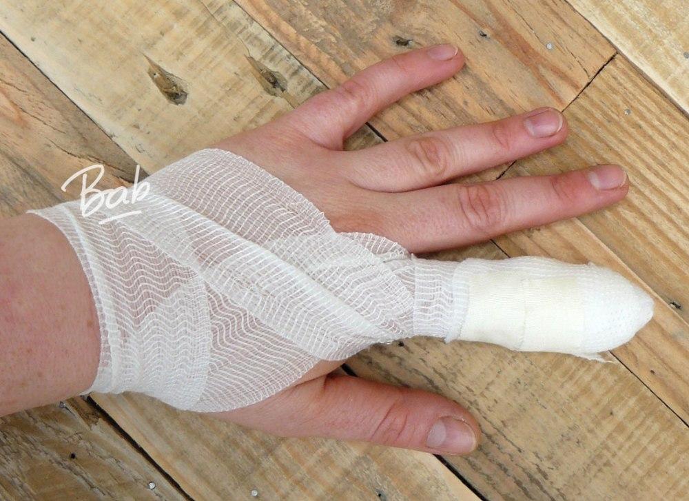 blessure-doigt