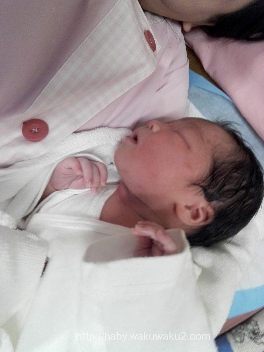 陣痛促進剤 出産レポート 計画無痛分娩 新生児 出生直後