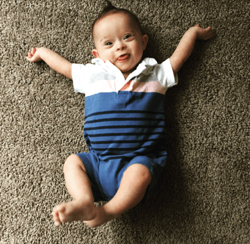 Down Syndrome The Perception vs The Reality: An Honest