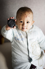 baby chicken pox photo
