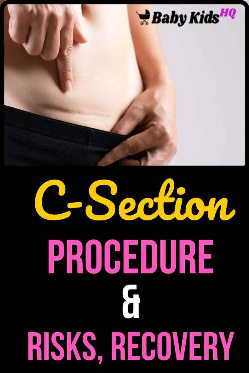 C-Section (Cesarean Section) Procedure, Risks, And Recovery -alt