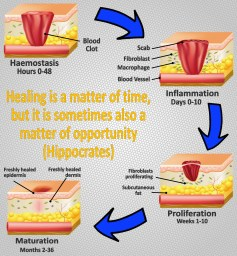Phases of Tissue Healing