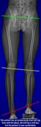 Leg length inequality shown on an X-ray