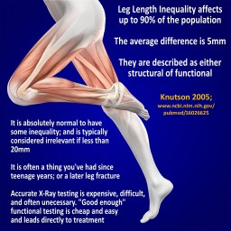 Leg length inequality is normal, and usually clinically irrelevant
