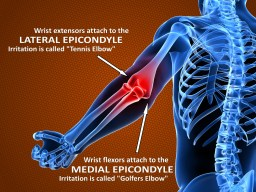 Epicondylitis, the difference between tennis elbow and golfers elbow