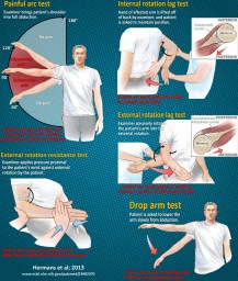 Orthopaedic Tests for the Rotator Cuff