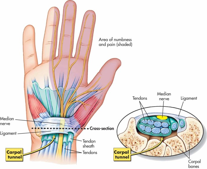 Carpal Tunnel - Median Nerve at the wrist