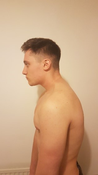 Image shows man who is suffering from upper cross syndrome